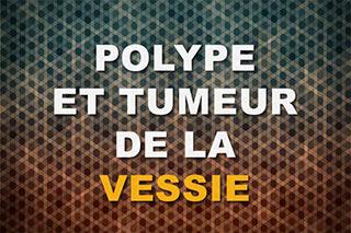 Polype de vessie et tumeur de vessie