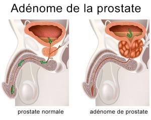 Vaporisation De Prostate Au Laser Greenlight