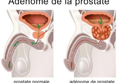 schéma adénome de la prostate
