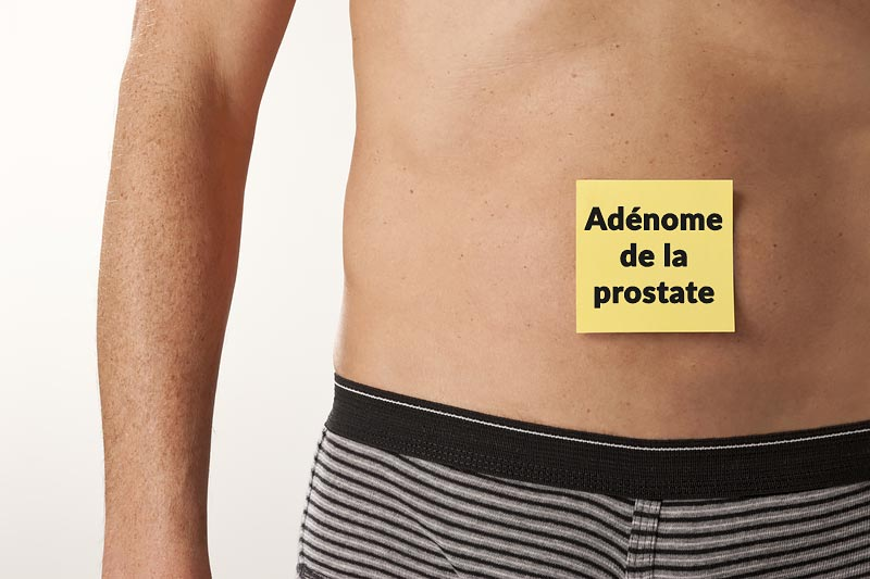 Illustration adénome de prostate