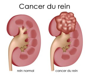 Image de cancer du rein