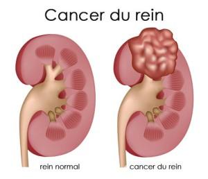 Image de cancer du rein