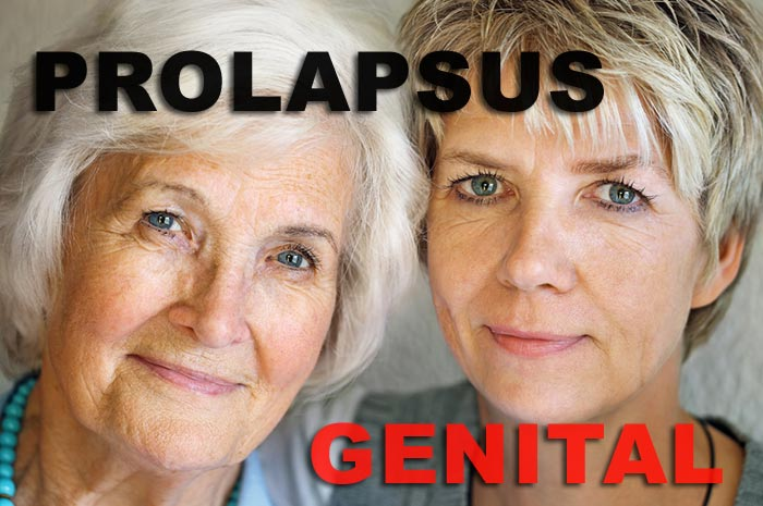 Image de femmes - prolapsus génital