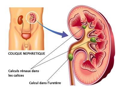 schéma mécanisme colique néphrétique
