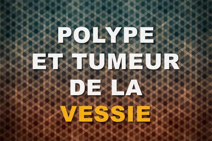 image polype de vessie tumeur de vessie