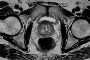 IRM de la prostate